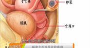 《奇妙的中医》 解密女性慢性盆腔疼痛