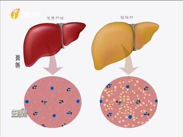 脂肪肝发病率趋年轻化 养成良好习惯可预防