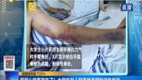 最担心的事发生了!大学生与人掰手腕手臂粉碎性骨折