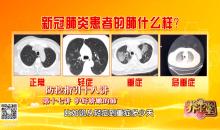 新型冠狀病毒防控指引十八講——護好嬌嫩的肺