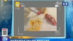 外科醫生用手術刀剝小龍蝦 既護手又減壓