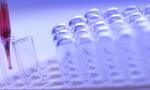 中国团队发现可阻断新冠病毒感染的人源单克隆抗体