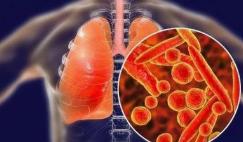 世卫组织:泰国发现1例新型冠状病毒病例