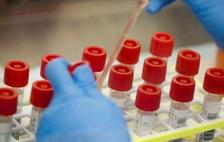 世卫组织宣布暂停羟氯喹治疗新冠试验