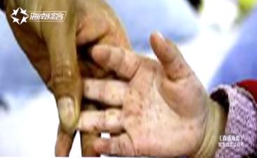 手足 口 病 感染